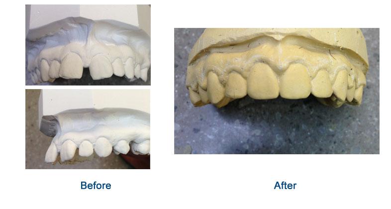 orthodontic-01
